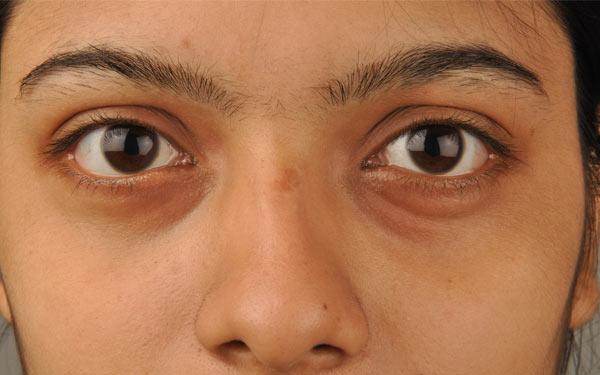 Thâm quầng mắt và bọng mắt