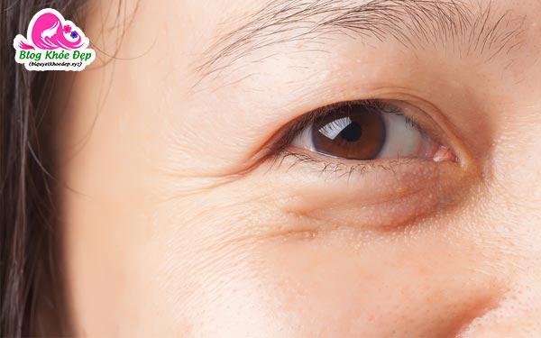 Bọng mắt là gì
