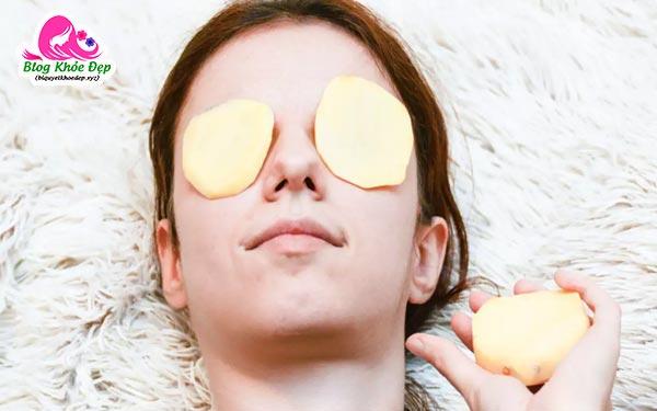 Cách trị bọng mắt bằng khoai tây