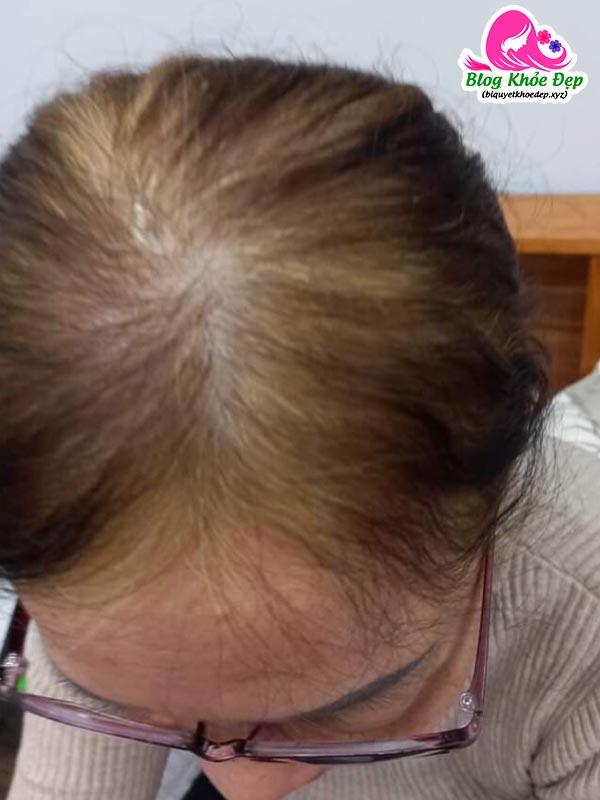 Dầu gội Sin Hair có tốt không