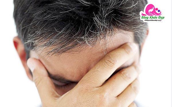 Nguyên nhân gây tóc bạc sớm