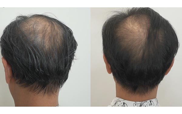 Review Sin Hair
