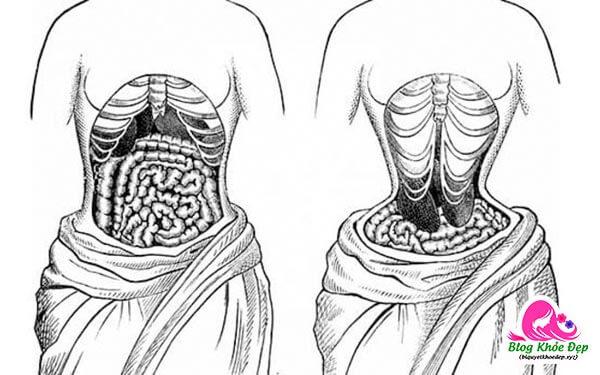 Tác hại của đeo đai nịt bụng