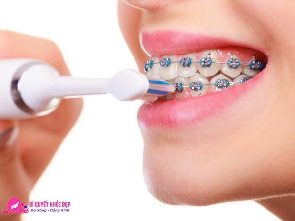 Đánh răng đúng cách cho người niềng răng