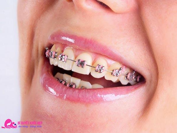 Nguyên nhân răng bị ố vàng khi niềng răng